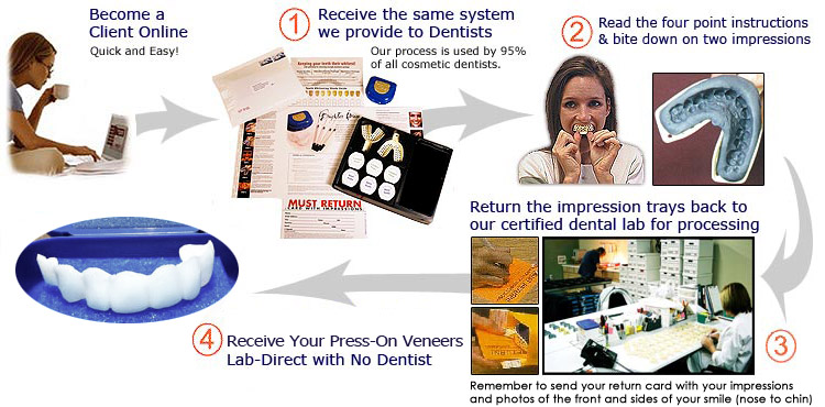 Our Simple Four Step Press On Veneers Process Is Easy